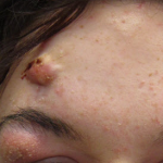 red bumps on cheeks not acne