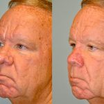 what is rhinophyma