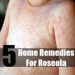 roseola treatment