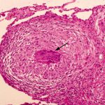sarcoid granulomatous