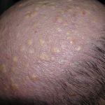 pilar cysts on head