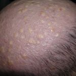cysts on scalp