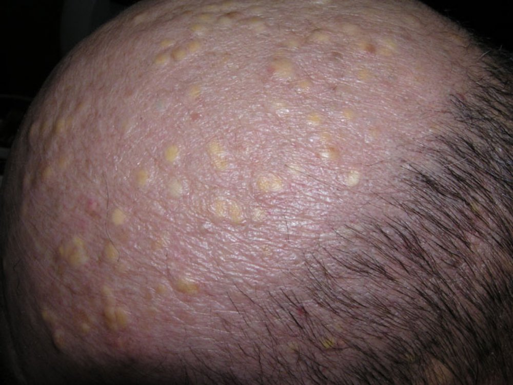 Cysts On Scalp - Pictures, Photos-9743