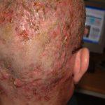 infected folliculitis