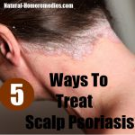 scalp psoriasis treatments