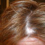 scalp ringworms