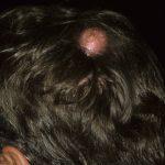 sebaceous cysts on scalp