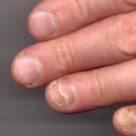 toenail detaching from nail bed
