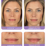 hyaluronic acid injections face