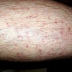 cutaneous vasculitis lesions