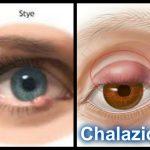 hordeolum vs chalazion