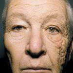 sun damage face