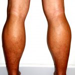 venous insufficiency pictures