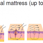 horizontal mattress suture