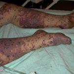 meningococcemia rash