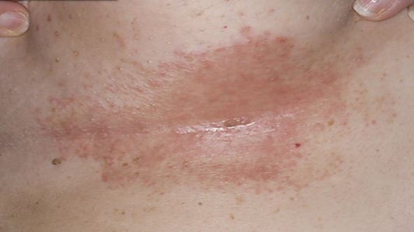 Diabetic Rashes Pictures Pictures Photos