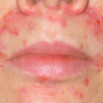 rash around mouth adults