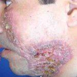 groin acne