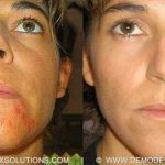 demodex mites on face