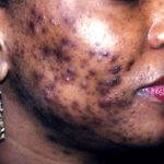 cause of acne vulgaris