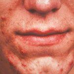 pimple like rash on back