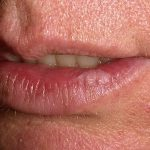 actinic cheilitis lip