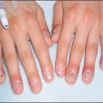 finger lesions
