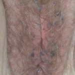 angiokeratomas vulva