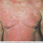 sulfa drug allergic reactions