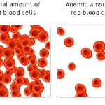 anemia itching