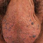 purple bumps on skin