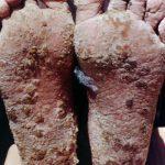 arsenic poison symptom