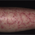 follicular dermatitis