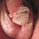 scabies rash treatment