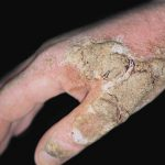 scabies burrows