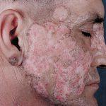 bullous lupus