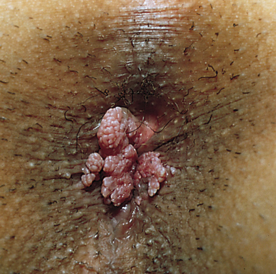 Molluscum Contagiosum On Penile Shaft Pictures - Pictures -8838