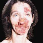 nose rash