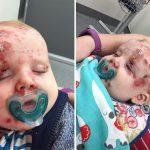 chicken pox in babies