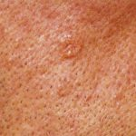 skin growth on face