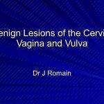 lesion on vagina