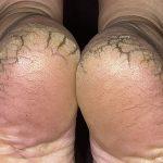 cracked heel treatment