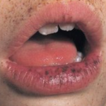 black spots in mouth