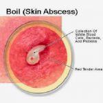 boil in nose