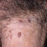 herpes on penus pictures