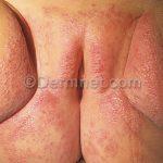 infection dermatitis