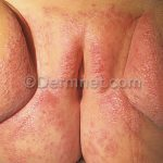 yeast infection images