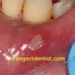 sore on inside of bottom lip