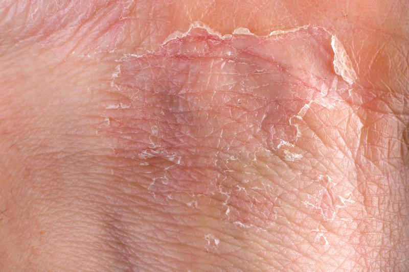 vaginal eczema