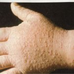 common dermatological conditions